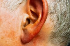 A Picture of an Ear